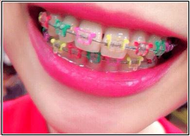 アウトデラックス 紅林大空のカラフルモデルの歯と私服w画像あり